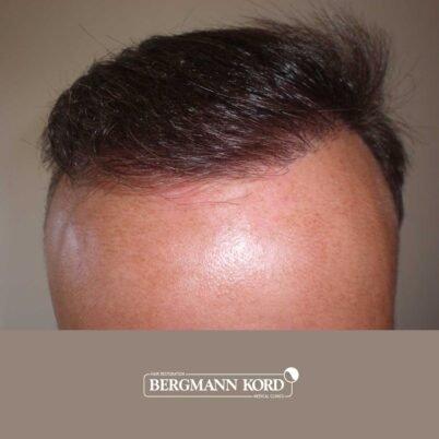 hair-transplantation-bergmann-kord-results-FUT-66029TL-7-months-hairline-001