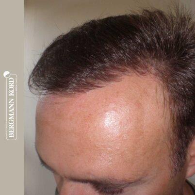 hair-transplantation-bergmann-kord-results-FUT-66029TL-7-months-left-001