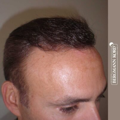 hair-transplantation-bergmann-kord-results-FUT-66029TL-7-months-right-001