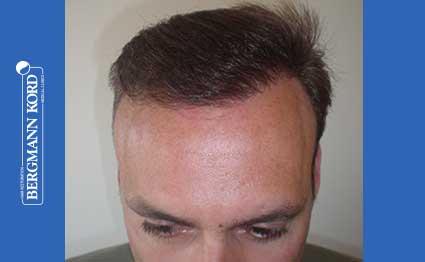 hair-transplantation-bergmann-kord-results-FUT-66029TL-after-001