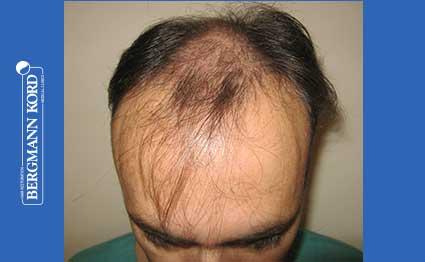 hair-transplantation-bergmann-kord-results-FUT-66029TL-before-001