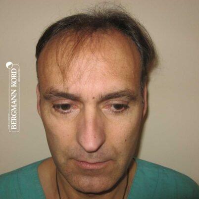 hair-transplantation-bergmann-kord-results-FUT-66029TL-before-front-001