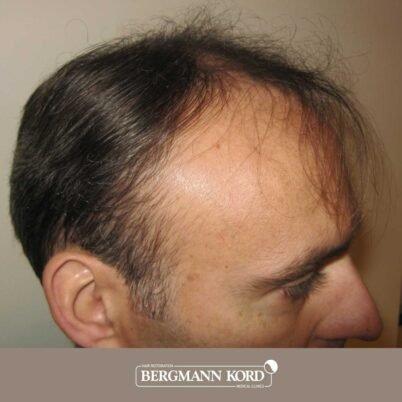hair-transplantation-bergmann-kord-results-FUT-66029TL-before-left-001