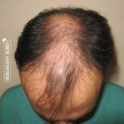 hair-transplantation-bergmann-kord-results-FUT-66029TL-before-top-001