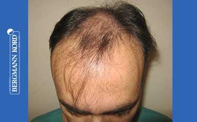 hair-transplantation-bergmann-kord-results-FUT-66029TL-thumb-001