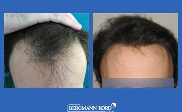 hair-transplantation-bergmann-kord-results-men-11099PG-before-after-001