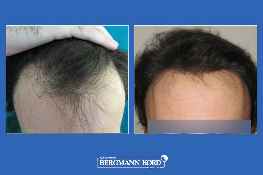 hair-transplantation-bergmann-kord-results-men-11099PG-before-after-001