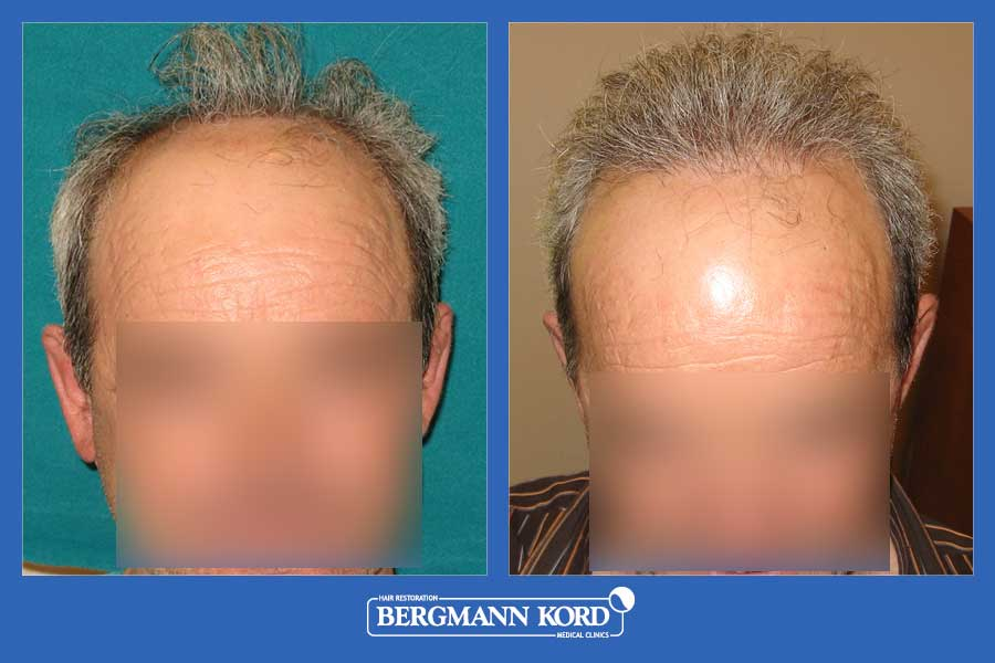 hair-transplantation-bergmann-kord-results-men-19051PG-before-after-001