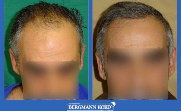hair-transplantation-bergmann-kord-results-men-19089PG-before-after-001