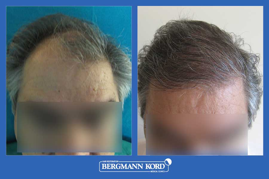 hair-transplantation-bergmann-kord-results-men-20089PG-001