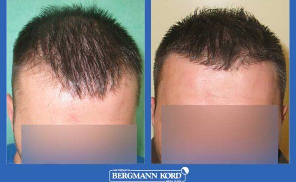 hair-transplantation-bergmann-kord-results-men-20291PG-before-after-001