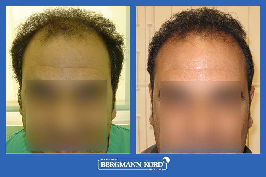 hair-transplantation-bergmann-kord-results-men-21366PG-before-after-001