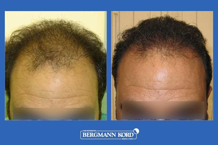 hair-transplantation-bergmann-kord-results-men-21366PG-before-after-002