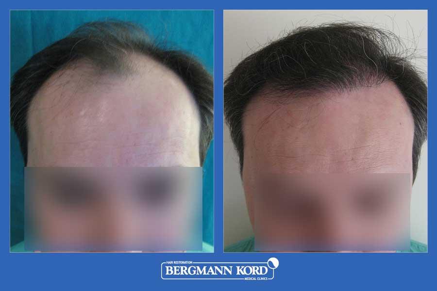 hair-transplantation-bergmann-kord-results-men-22078PG-before-after-001