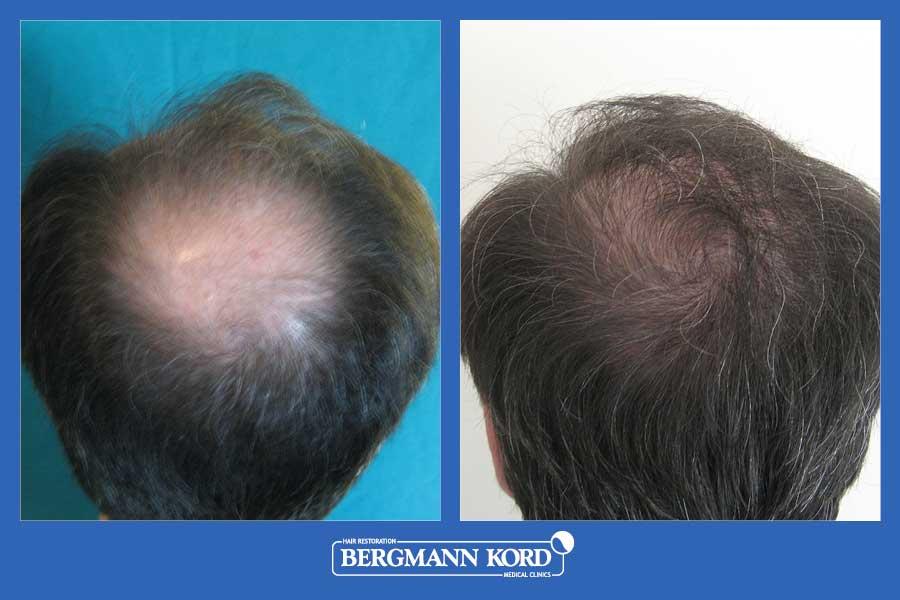 hair-transplantation-bergmann-kord-results-men-22078PG-before-after-002