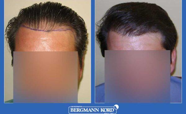 hair-transplantation-bergmann-kord-results-men-22334PG-before-after-001