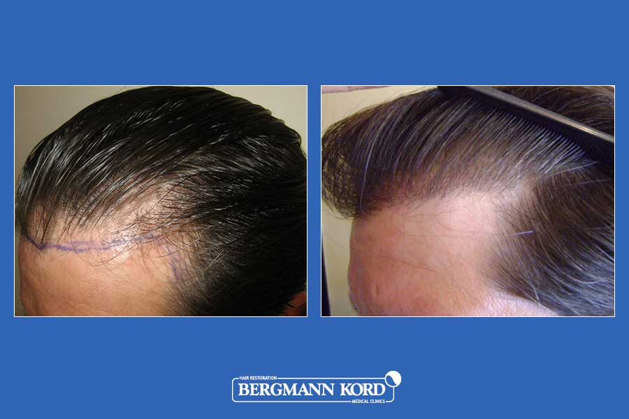 hair-transplantation-bergmann-kord-results-men-22334PG-before-after-002