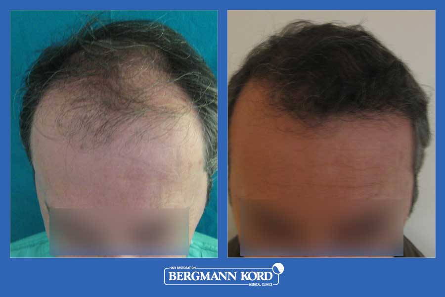 hair-transplantation-bergmann-kord-results-men-23210PG-before-after-001
