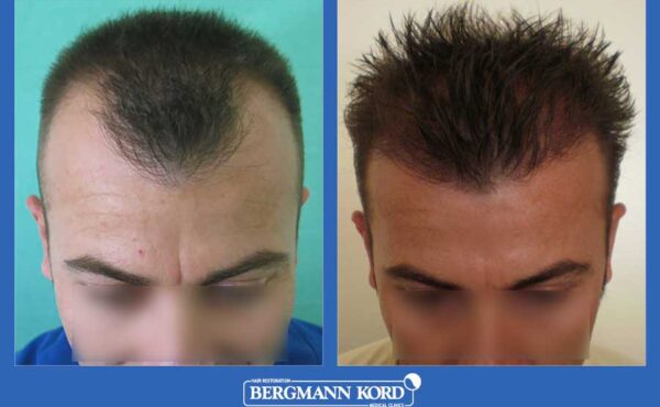 hair-transplantation-bergmann-kord-results-men-23424PG-before-after-001