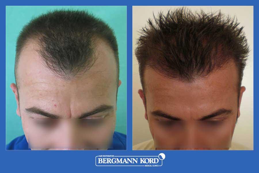 hair-transplantation-bergmann-kord-results-men-23424PG-before-after-001