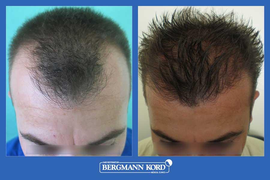 hair-transplantation-bergmann-kord-results-men-23424PG-before-after-002