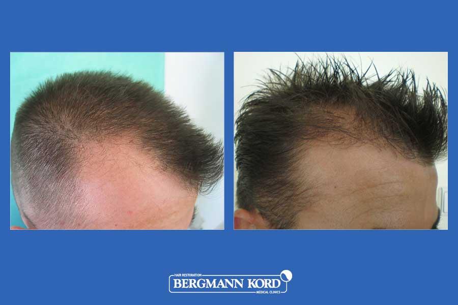 hair-transplantation-bergmann-kord-results-men-23424PG-before-after-003