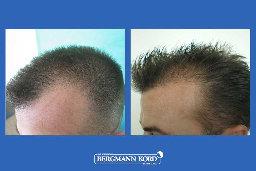 hair-transplantation-bergmann-kord-results-men-23424PG-before-after-004