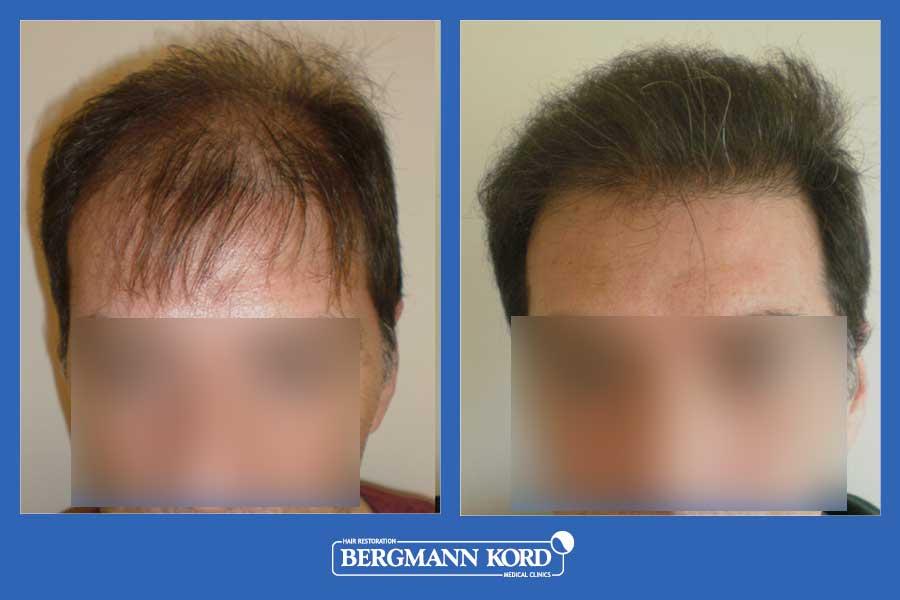 hair-transplantation-bergmann-kord-results-men-23501PG-before-after-001