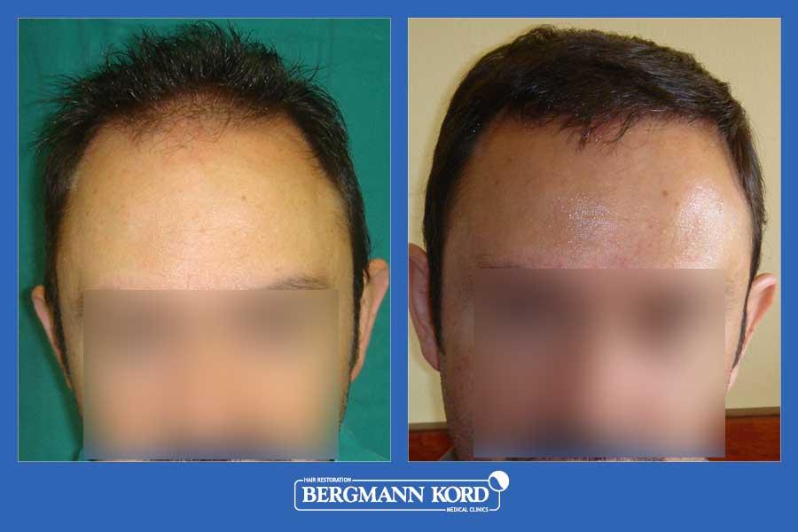 hair-transplantation-bergmann-kord-results-men-24313PG-before-after-001