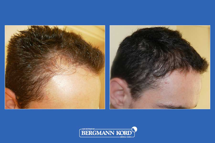 hair-transplantation-bergmann-kord-results-men-24567PG-before-after-001