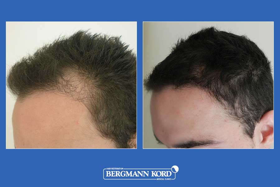 hair-transplantation-bergmann-kord-results-men-24567PG-before-after-002