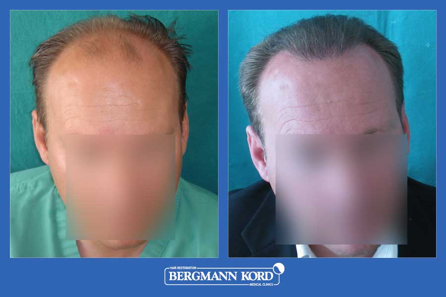 hair-transplantation-bergmann-kord-results-men-24800PG-before-after-001