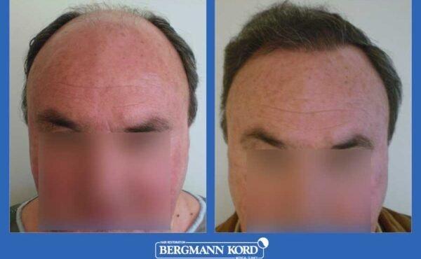 hair-transplantation-bergmann-kord-results-men-25029PG-before-after-001