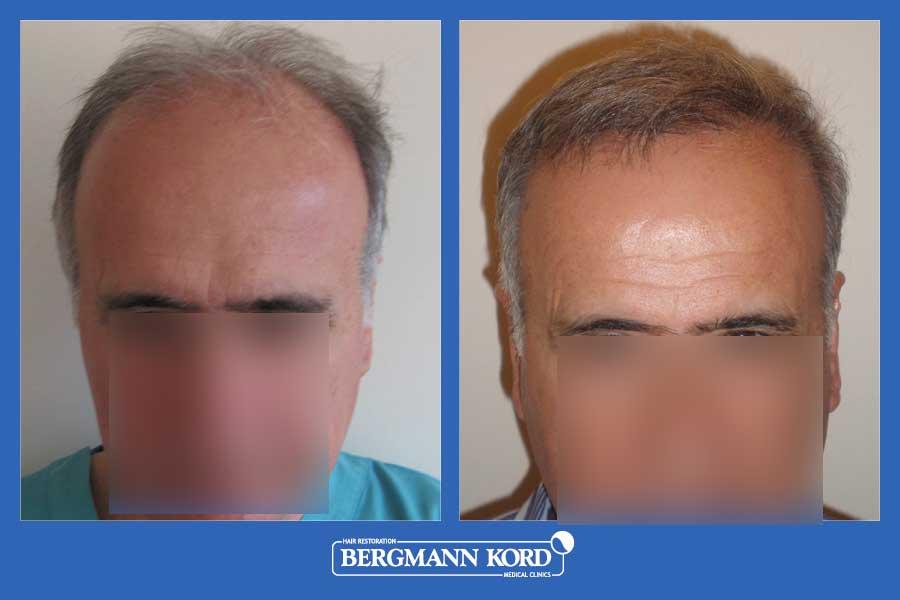 hair-transplantation-bergmann-kord-results-men-25067PG-before-after-001