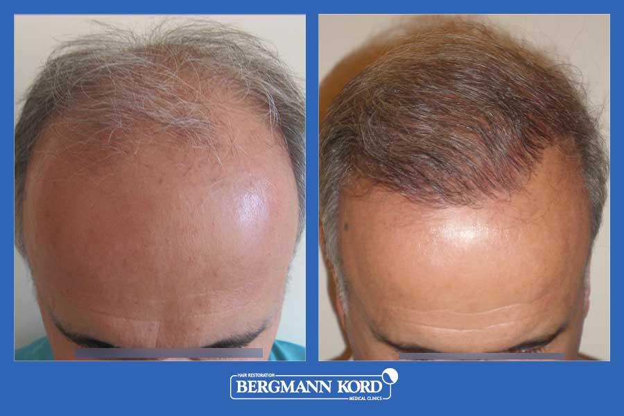 hair-transplantation-bergmann-kord-results-men-25067PG-before-after-002