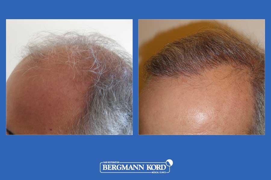 hair-transplantation-bergmann-kord-results-men-25067PG-before-after-003