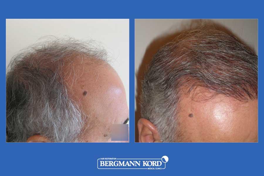hair-transplantation-bergmann-kord-results-men-25067PG-before-after-004