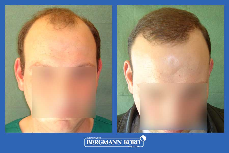 hair-transplantation-bergmann-kord-results-men-26095PG-before-after-001