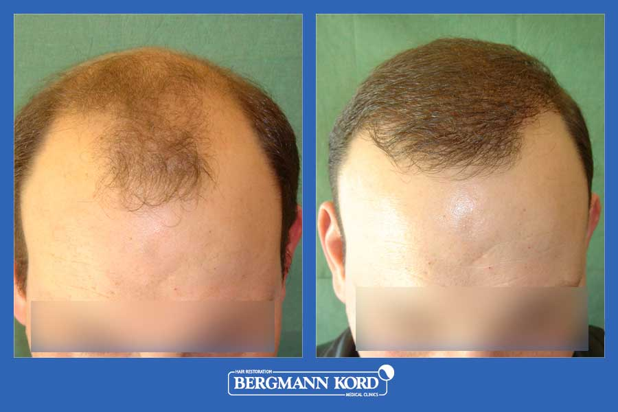 hair-transplantation-bergmann-kord-results-men-26095PG-before-after-002