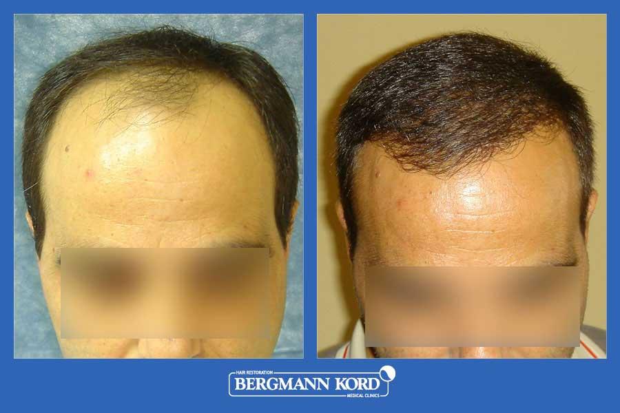 hair-transplantation-bergmann-kord-results-men-26099PG-before-after-001