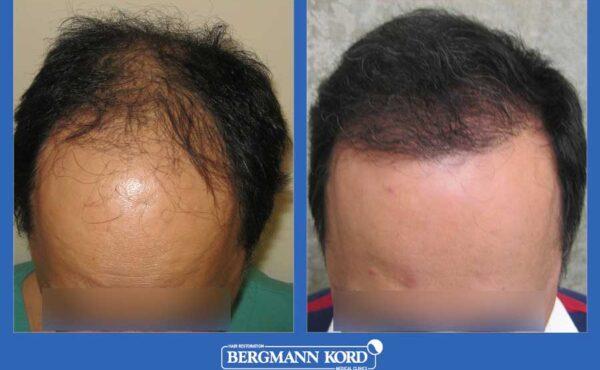 hair-transplantation-bergmann-kord-results-men-26308PG-before-after-001
