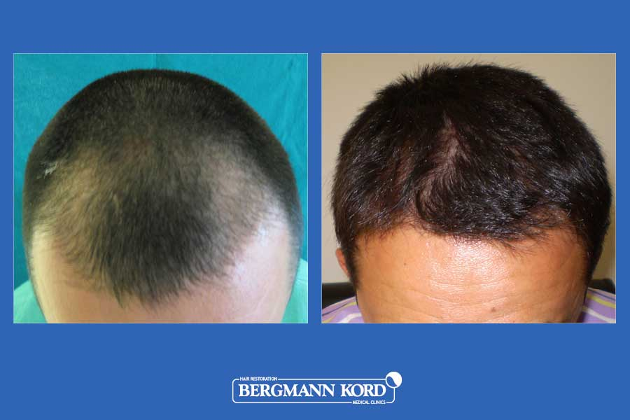 hair-transplantation-bergmann-kord-results-men-27001PG-before-after-001