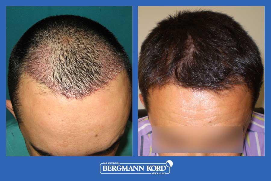 hair-transplantation-bergmann-kord-results-men-27001PG-before-after-002