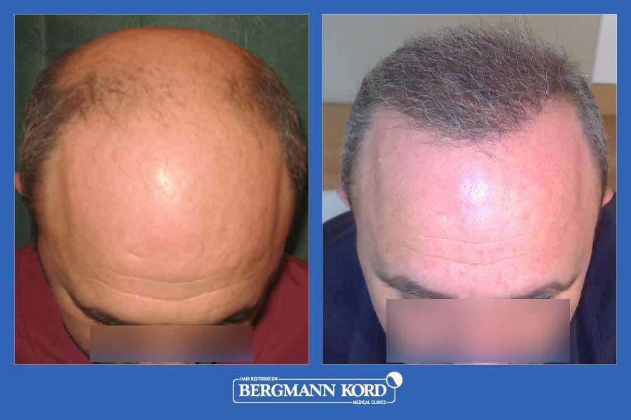 hair-transplantation-bergmann-kord-results-men-27689PG-before-after-001