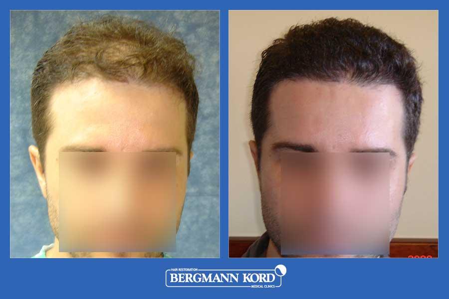hair-transplantation-bergmann-kord-results-men-28073PG-before-after-001