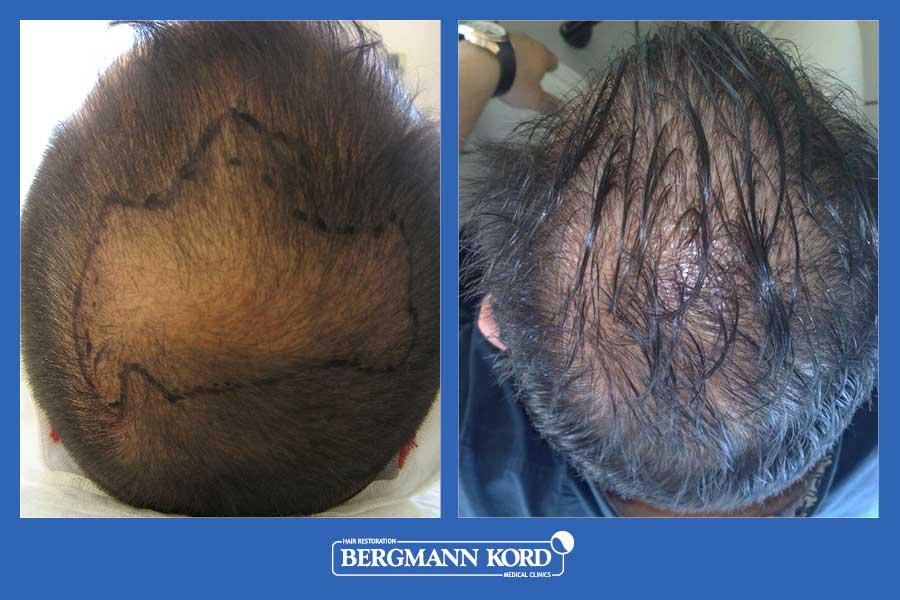 hair-transplantation-bergmann-kord-results-men-28101PG-before-after-001