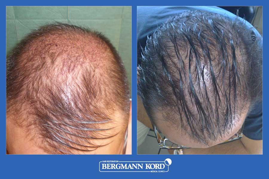 hair-transplantation-bergmann-kord-results-men-28101PG-before-after-002