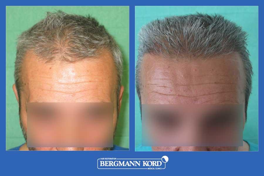 hair-transplantation-bergmann-kord-results-men-28776PG-before-after-001