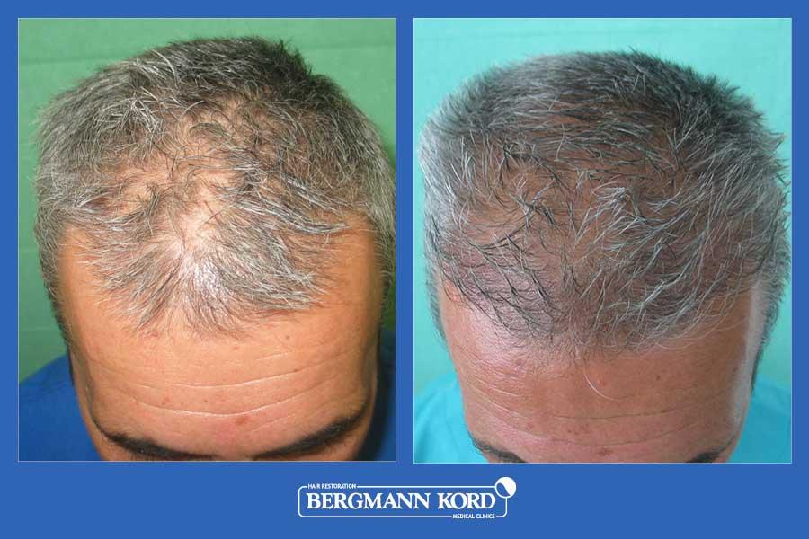 hair-transplantation-bergmann-kord-results-men-28776PG-before-after-002