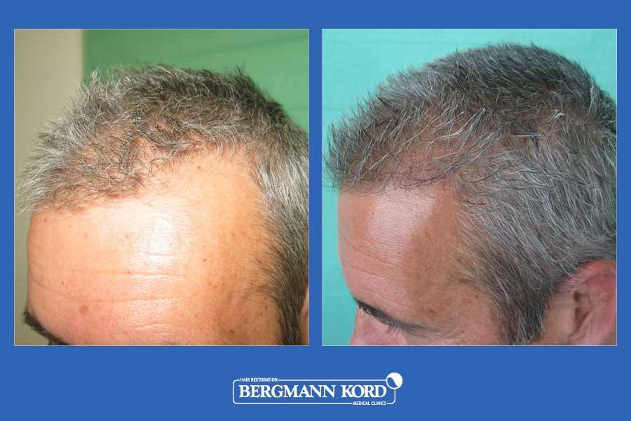 hair-transplantation-bergmann-kord-results-men-28776PG-before-after-003